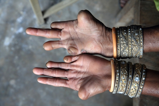 leprosy hands